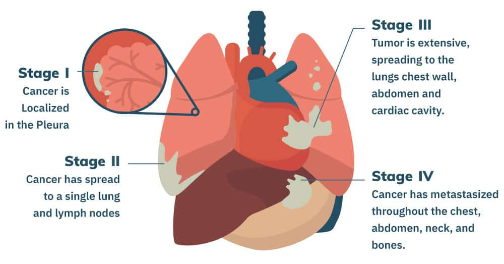 What is Mesothelioma and the symptoms of Mesothelioma? and Diagnosis of Mesothelioma