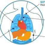 common mesothelioma symptomsmesothelioma symptoms