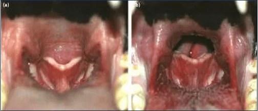 (A) Prodloužené měkké patro blokuje dýchací cesty vhltanu, (B) Dýchací cesty viditelné a průchozí po chirurgickém zkrácení měkkého patra