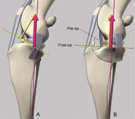 Schéma znázorňující síly působící na kolenní kloub před a po zákroku TPLO.