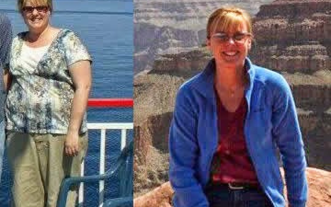 Mexicali Bariatric Patient / Five years after surgery.