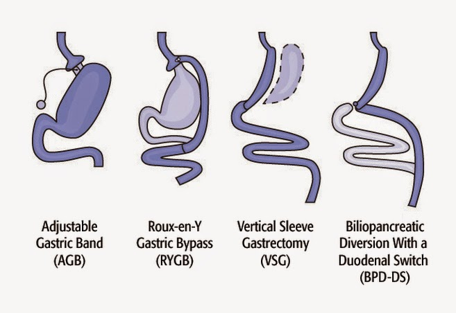 What are my options for lap-band revision surgery?
