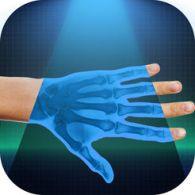 this is iphone xray camera app nomao