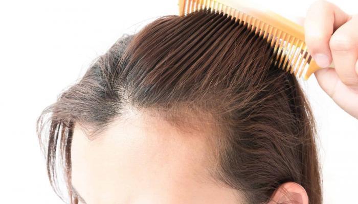 تساقط الشعر بعد التعافي من كوفيد19