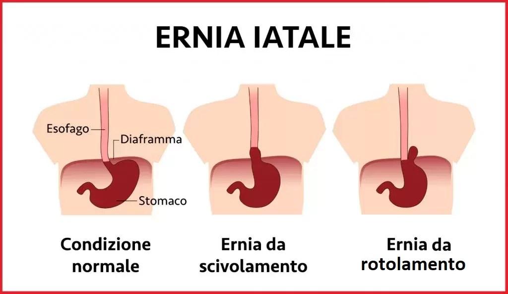 ERNIA IATALE
