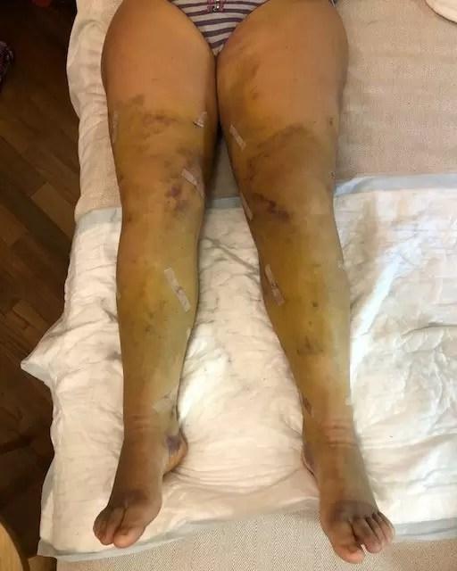 terapia del lipedema