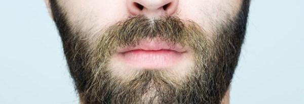 mens-facial-hair-loss
