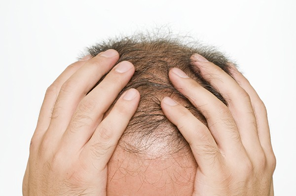 why you should choose a bay area hair transplant doctor