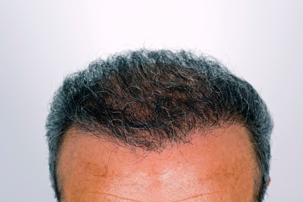 San Jose FUE Hair Transplant Worth The Money
