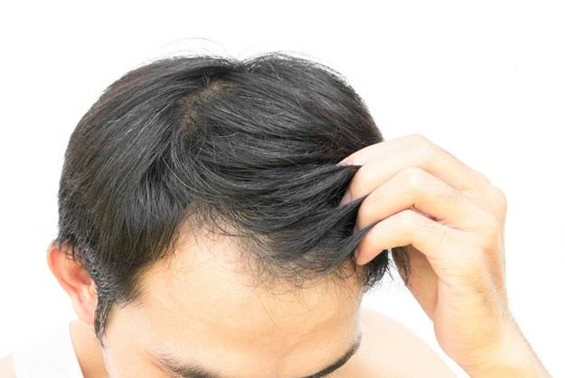 premature mens hair loss