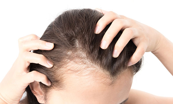 female hair loss from thyroid conditions