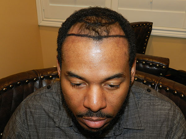 before san jose african american hair transplant