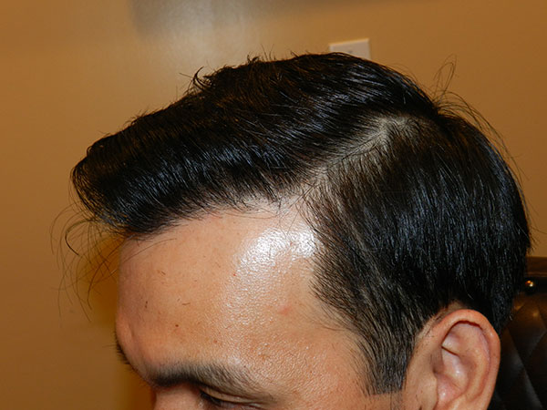 after FUE Hair Restoration at mhta clinic
