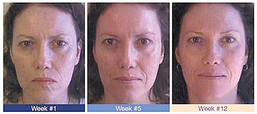 The impressive results of VBT™ in action can be clearly seen in this test subject. Only twelve weekly treatment sessions show remarkable rejuvenation and softening of the skin and facial features.