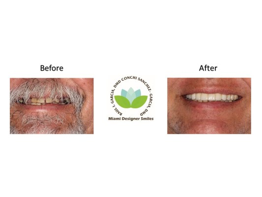 Full Mouth Rejuvenination