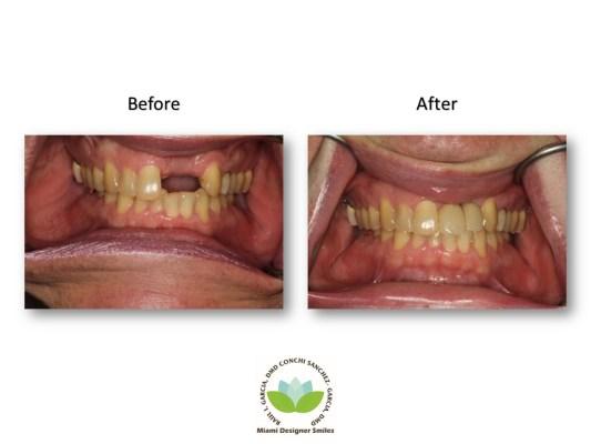 Dental Implants (Temps)