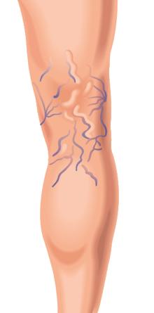 varicose veins on back of leg illustration
