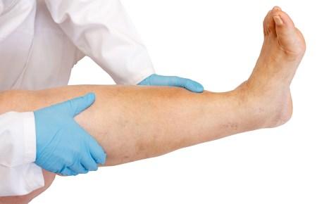leg swelling and pain - dvt