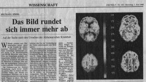 Alzheimer für Web