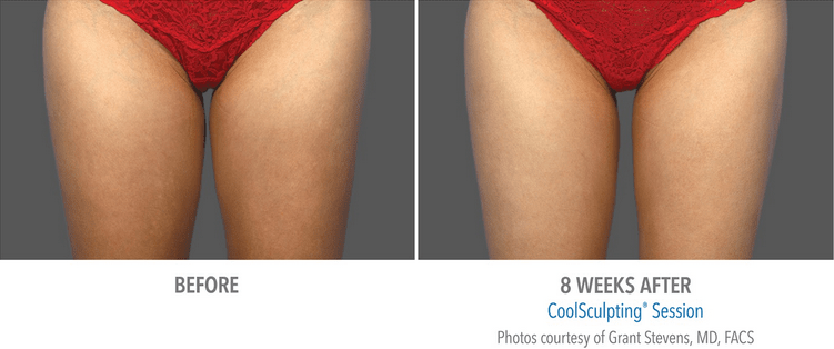 coolsculpting the solution for slimming inner amp outer thighs
