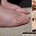 El mejor remedio natural para la hinchazón de las piernas