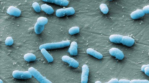 E.coli DNA damage
