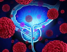 cause di frequenti infezioni alla prostata