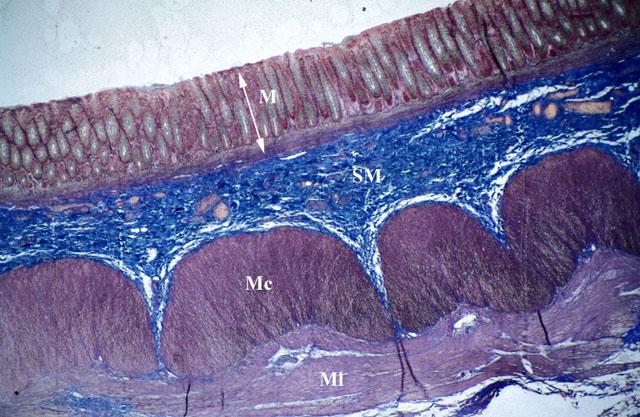 Sezione longitudinale di colon umano. La #biodiversità tra i vari strati della organizzazione generale della parete. La tonaca mucosa (M) è sottile e liscia, non sono più presenti né pieghe circolari, né villi intestinali. I rilievi interni, detti pieghe semilunari, sono dovuti al fatto che lo strato muscolare longitudinale discontinuo esterno è più corto dell'intestino. Alla formazione di tali pieghe, pertanto, partecipano la tonaca mucosa, la tonaca sottomucosa (SM) e lo strato muscolare interno circolare (Mc) della tonaca muscolare. La tonaca sierosa avvolge il colon solo in alcuni tratti, nei restanti tale tonaca viene sostituita dalla tonaca avventizia.