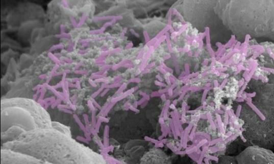 Lactobacillus crispatus proteggeva dal parto pre-termine, secondo una prima ricerca.