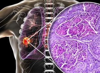 cancro polmonare