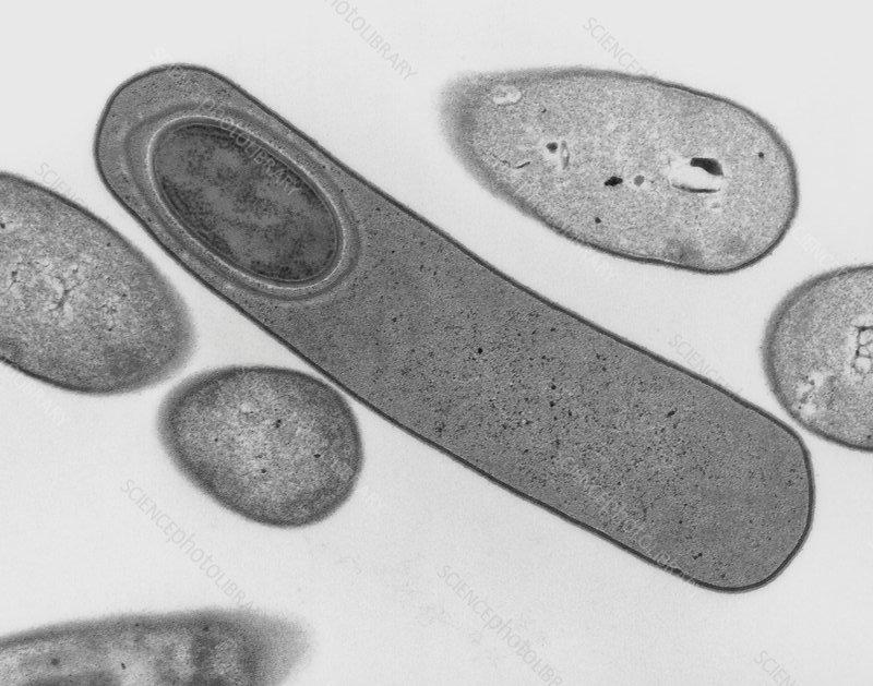 Microfotografia elettronica a trasmissione di C. difficile che forma un'endospora