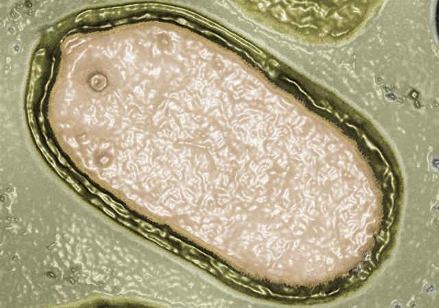 Pandoravirus virus giganti