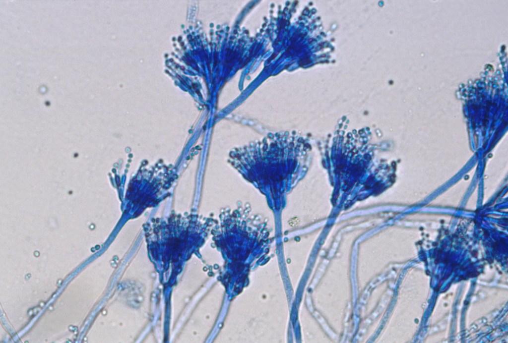 Aspergillus colorato con colorazione lattofenolo cotton blu