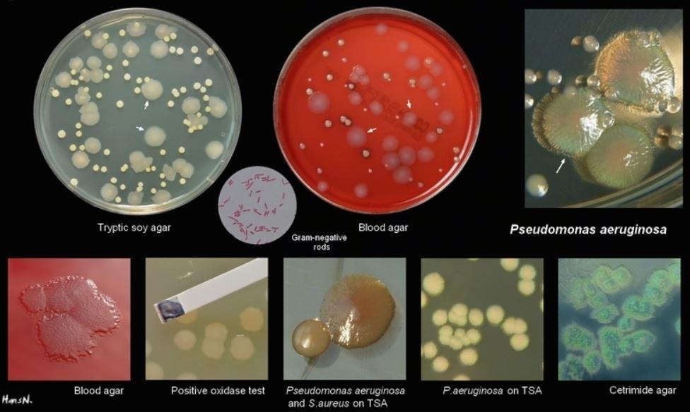 Diverse morfologie di crescita Pseudomonas aeruginosa in diversi terreni di coltura