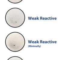 TPHA e VDRL: test sierologici per la diagnosi della Sifilide