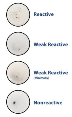Figura 3 - Positività e negatività del VDRL
