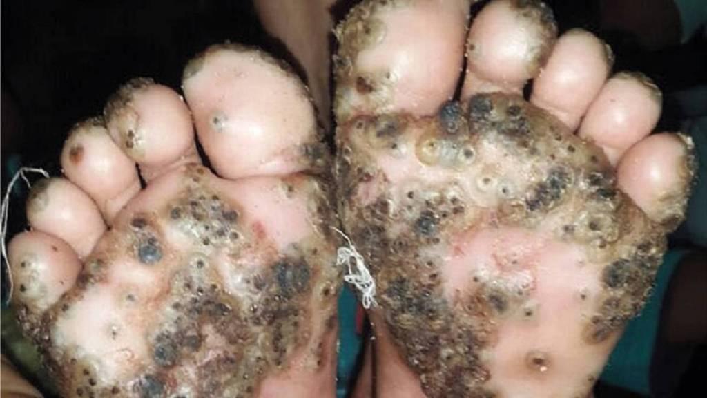 grave infestazione di Tunga penetrans