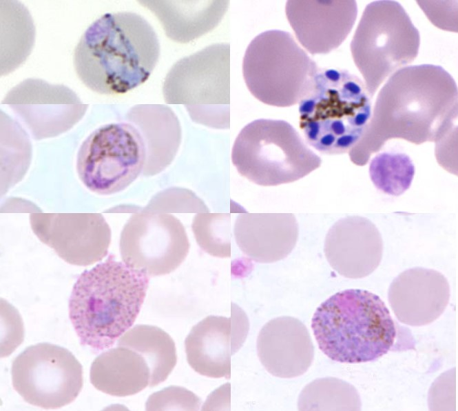 Plasmodium spp.