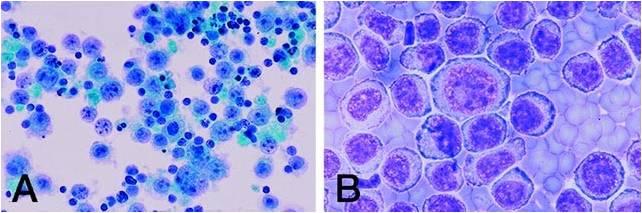 Cellule tipiche dei PEL. A) Predominanza di linfociti che mostrano nuclei rotondi, cromatina granulare, e una moderata quantità di citoplasma. Molti dei piccoli nuclei sbiaditi rappresentano picnosi (necrosi cellulari individuale). B) Popolazione monomorfica di grandi cellule che esibiscono anisonucleosi, nuclei rotondi e cromatina dall'aspetto grossolano. Il pallore citoplasmatico centrale si fonde con la zona periferica distinta da un'intensa basofilia in molte cellule aventi un aspetto plasmablastico
