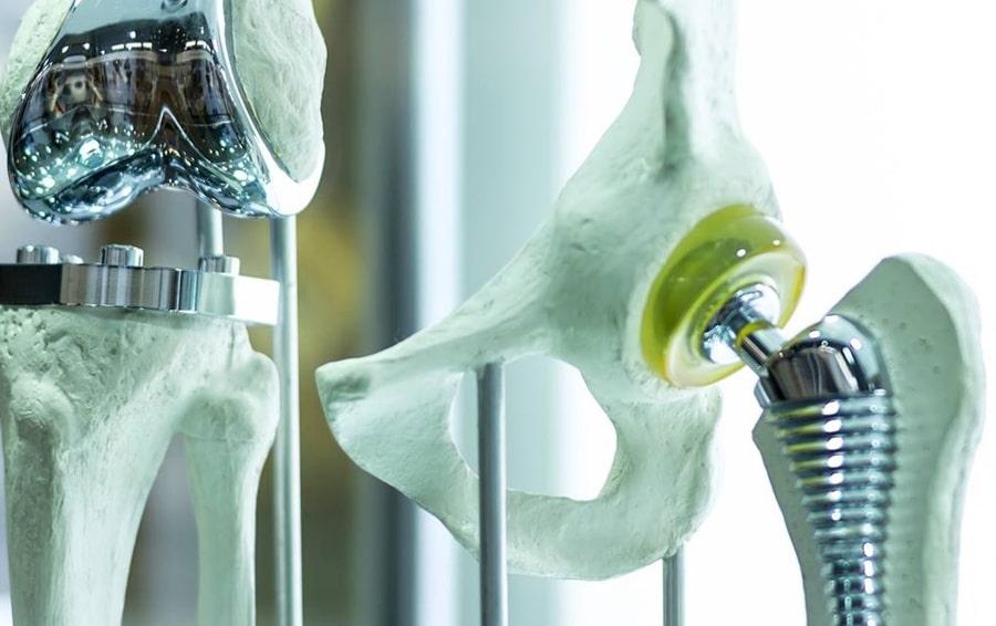 Terapia fagica per il trattamento delle infezioni delle protesi articolari