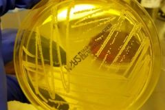 Staphilococcus aureus su MSA