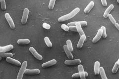 E. coli al SEM 2