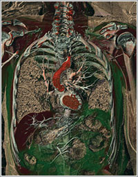 Vistuopsia - Anders Persson Center for Medical Image Science and Visualization