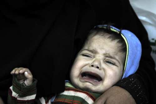 Yemeni child receives treatment at the Sabaeen hospital in Sanaa, Yemen on January 18, 2017 [Mohammed Hamoud/Anadolu Agency]