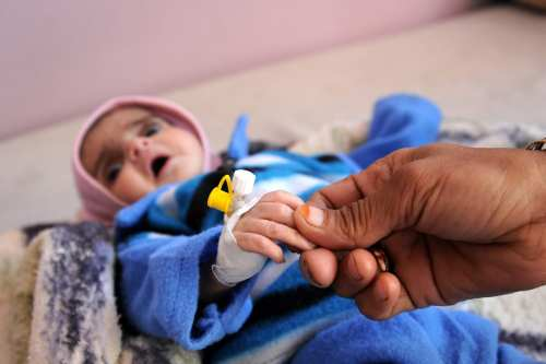 A baby receives treatment at the Sabaeen hospital in Sanaa, Yemen on January 18, 2017 [Mohammed Hamoud/Anadolu Agency]