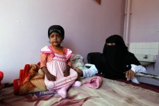 SANAA, YEMEN - JANUARY 18: A baby gets treatment at the Sabaeen hospital in Sanaa, Yemen on January 18, 2017. Thousands of families in Yemen face food safety and malnutrition problems because of the ongoing clashes in the country. ( Mohammed Hamoud - Anadolu Agency )