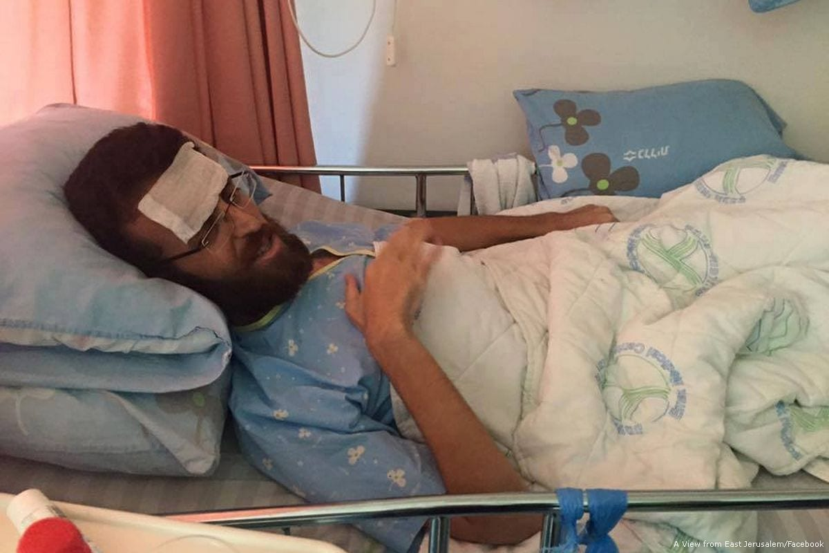Image of Palestinian hunger striker Mohamed Al-Qeq in hospital on 13 February 2016 [View from East Jerusalem/Facebook]