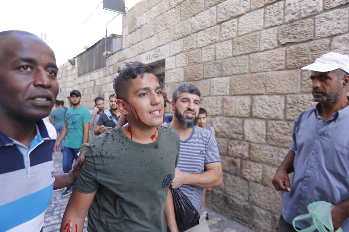 A wounded Palestinian is seen after Israeli forces intervened a protest in front Al-Aqsa compound in Jerusalem on 16 July 2017 [Mostafa Alkharouf/Anadolu Agency ]