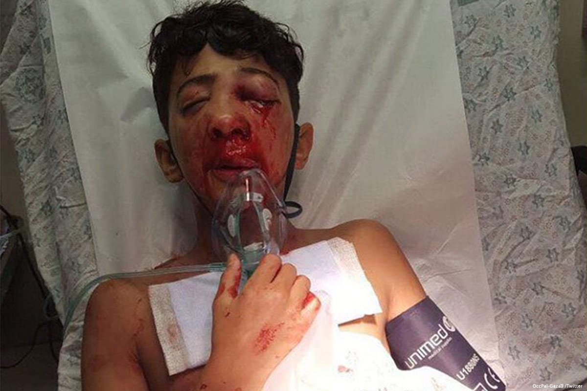 Nur Ayman Hamdan, a 13-year-old Palestinian from the occupied East Jerusalem who lost his eye after Israeli forces fired a sponge-tipped bullet at the teenager [Twitter]