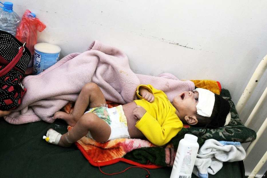 A malnourished baby receives medical treatment at a hospital in Sanaa, Yemen [Mohammed Hamoud/Anadolu Agency]